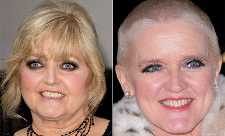 Linda Nolan: 'Bernie's death brought an end to our rift'