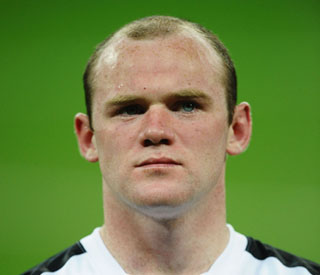 Wayne Rooney 'delighted' with hair transplant