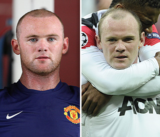 Wayne Rooney shows off results of hair transplant