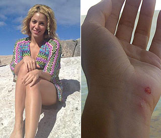 Shakira attacked by angry sea lion