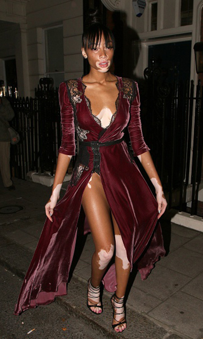 Top model Winnie Harlow rocked a lingerie-inspired dress at Mark's Club in London. 