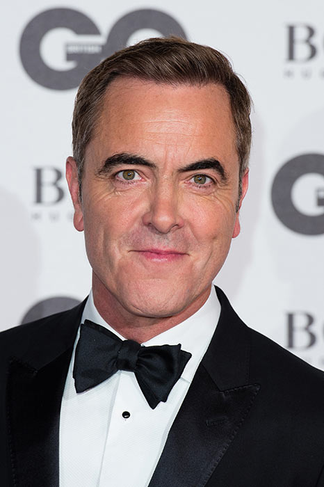 James-Nesbitt-hair-transplant