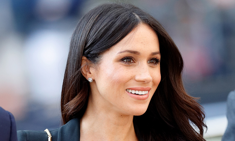 meghan-markle-white-teeth