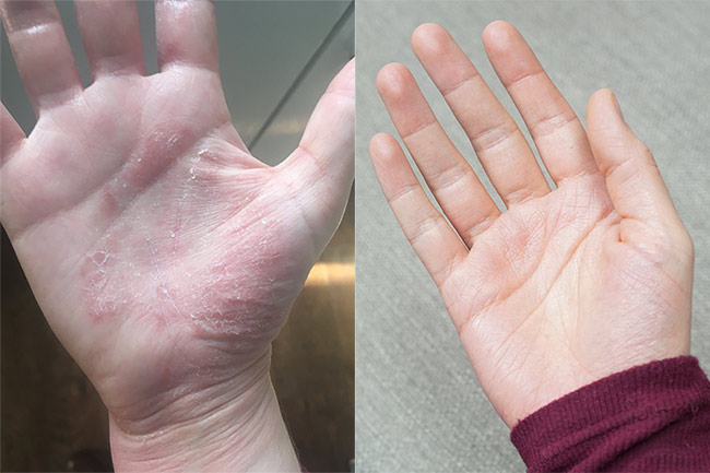 eczema-hands-before-and-after
