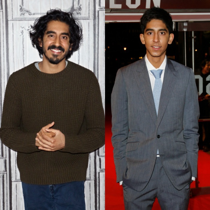 <b>Dev Patel, 2017 vs. 2008</b>