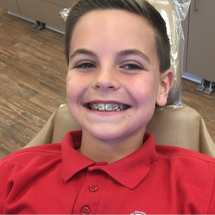 "Britney Spears' oldest son has a million dollar smile! The singer's ex Kevin Federline shared a picture of their son's colorful braces writing, ""Preston got his braces on today.. Lookin like a champ!!""
